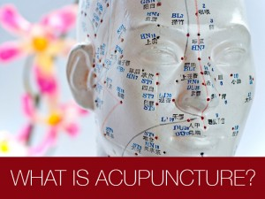 about-acupuncture